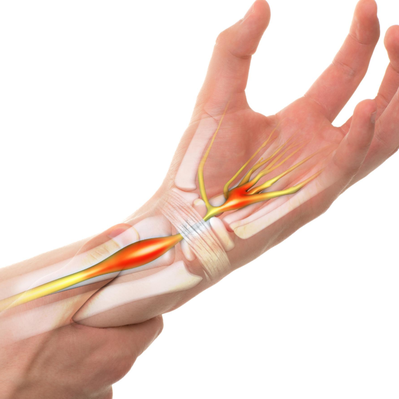 carpal tunnel treatment bay city