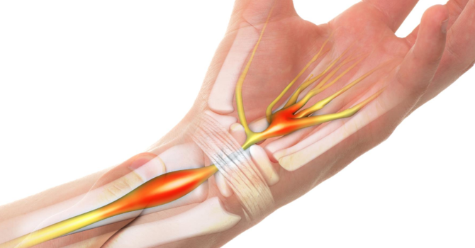 How to Prevent Carpal Tunnel  image